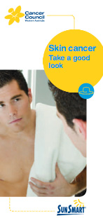 Skin cancer - Take a good look